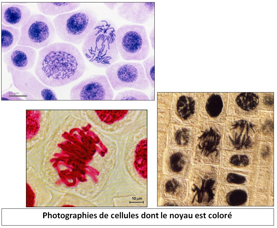 photos-cellules-noyeau-colore